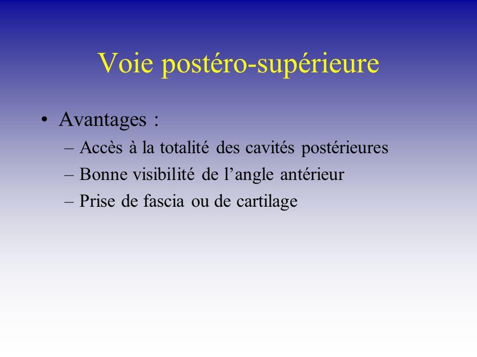 Voie postéro-supérieure Avantages : –Accès à la totalité des cavités postérieures –Bonne visibilité de langle antérieur –Prise de fascia ou de cartila