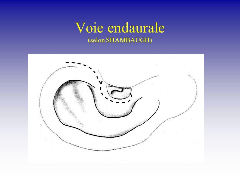 Indications : Chirurgie du cholestéatome Tympanoplastie