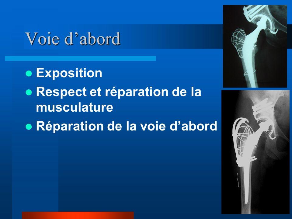 Voie dabord Exposition Respect et réparation de la musculature Réparation de la voie dabord