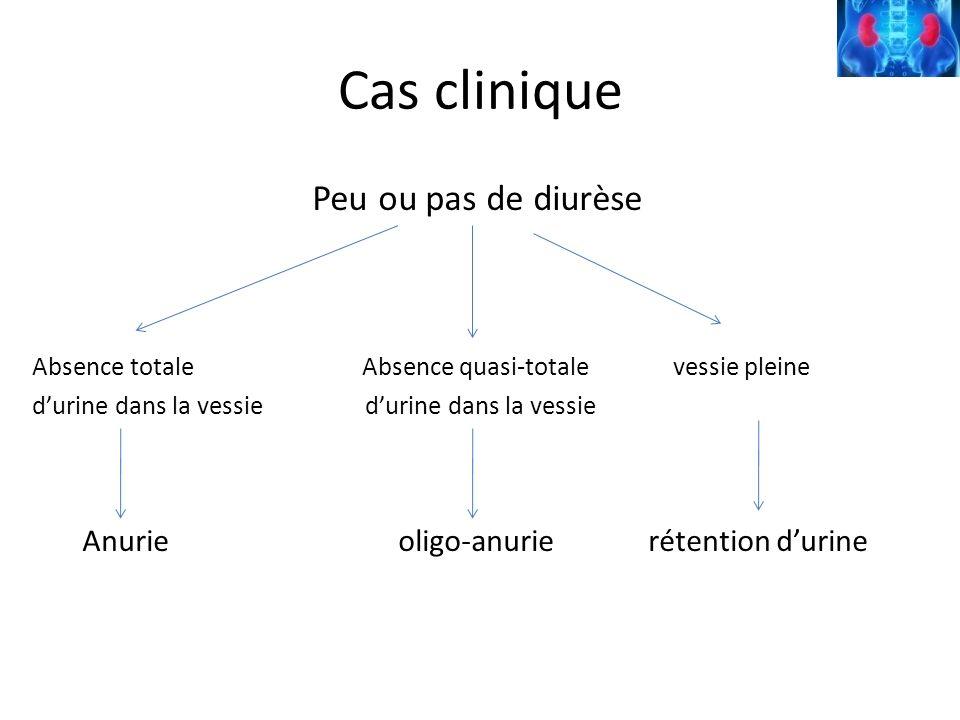 Étiologies ….