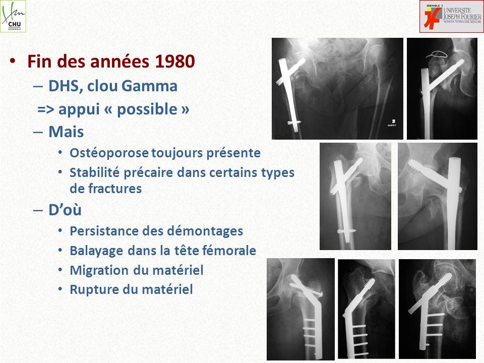 Fin des années 1980 – DHS, clou Gamma => appui « possible » – Mais Ostéoporose toujours présente Stabilité précaire dans certains types de fractures –