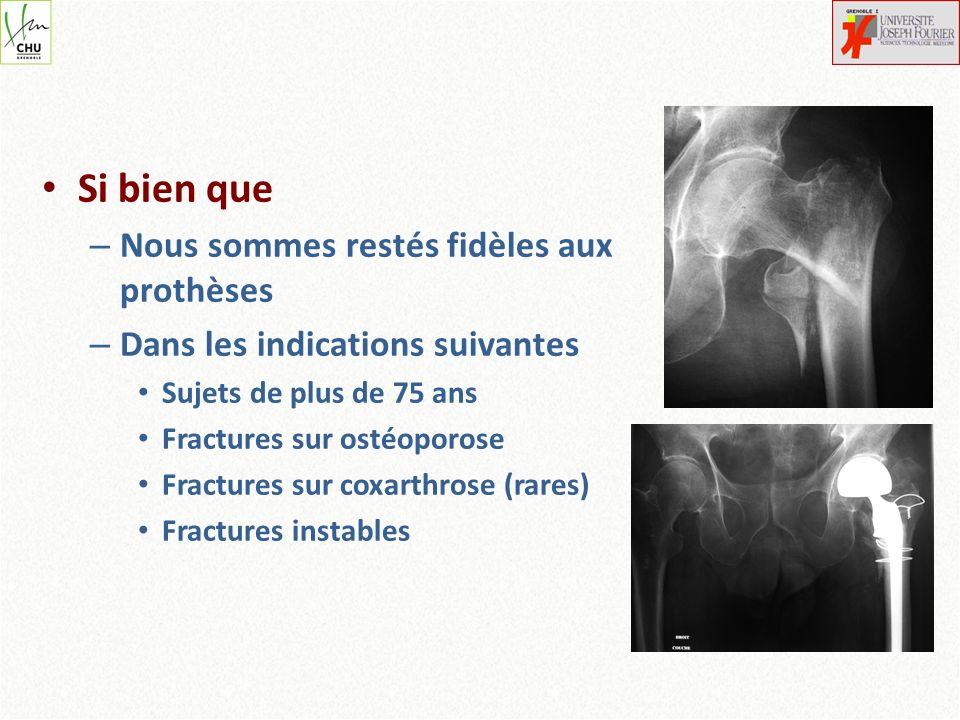 Si bien que – Nous sommes restés fidèles aux prothèses – Dans les indications suivantes Sujets de plus de 75 ans Fractures sur ostéoporose Fractures s