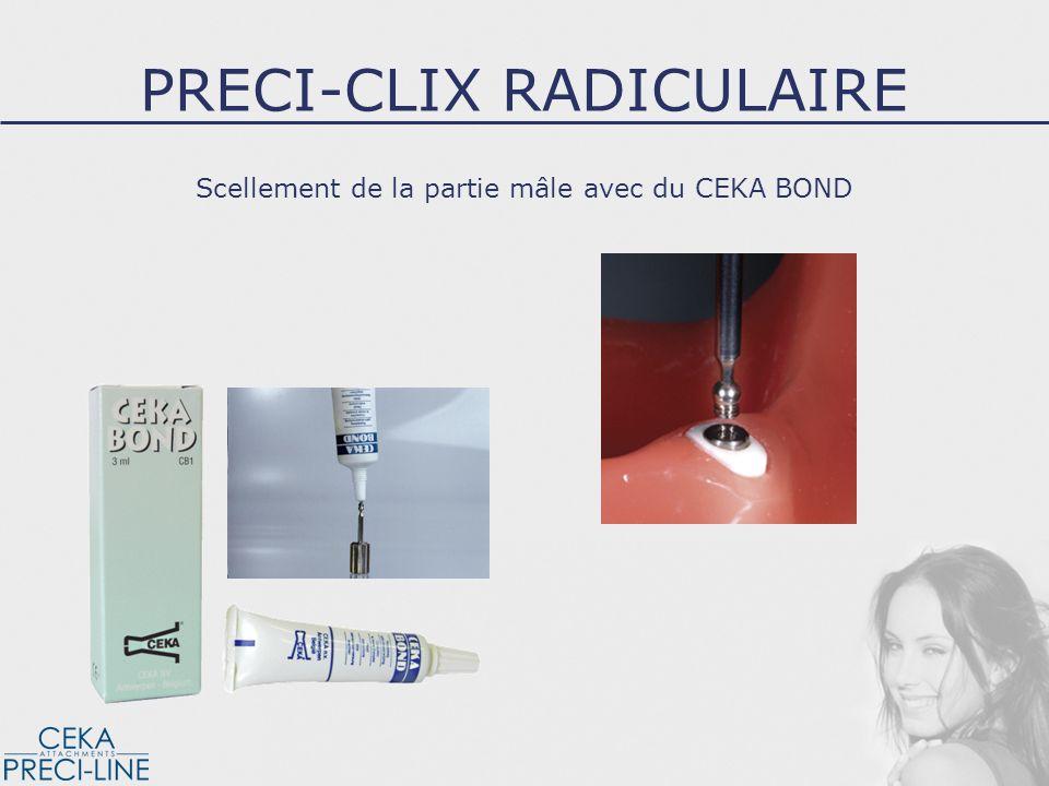 Scellement de la partie mâle avec du CEKA BOND PRECI-CLIX RADICULAIRE