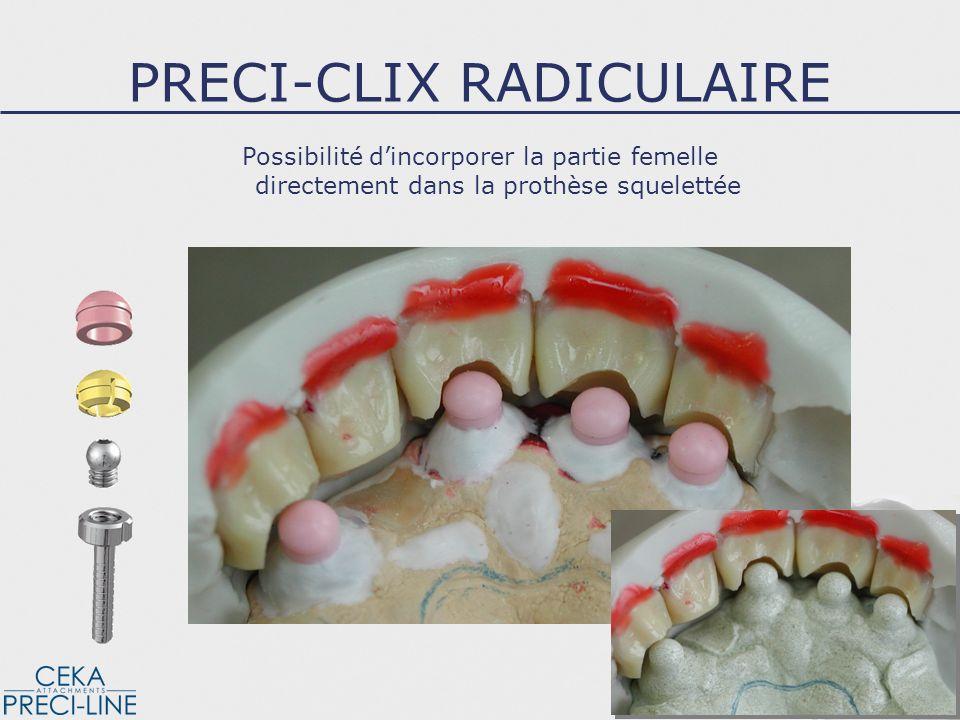 Possibilité dincorporer la partie femelle directement dans la prothèse squelettée PRECI-CLIX RADICULAIRE