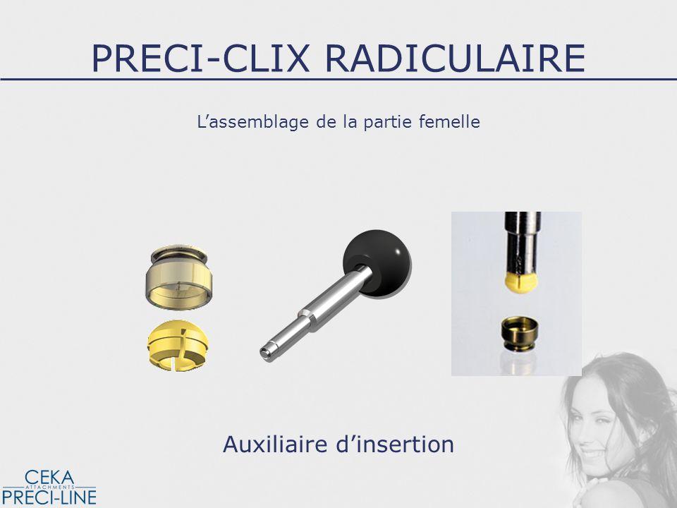 Lassemblage de la partie femelle Auxiliaire dinsertion PRECI-CLIX RADICULAIRE