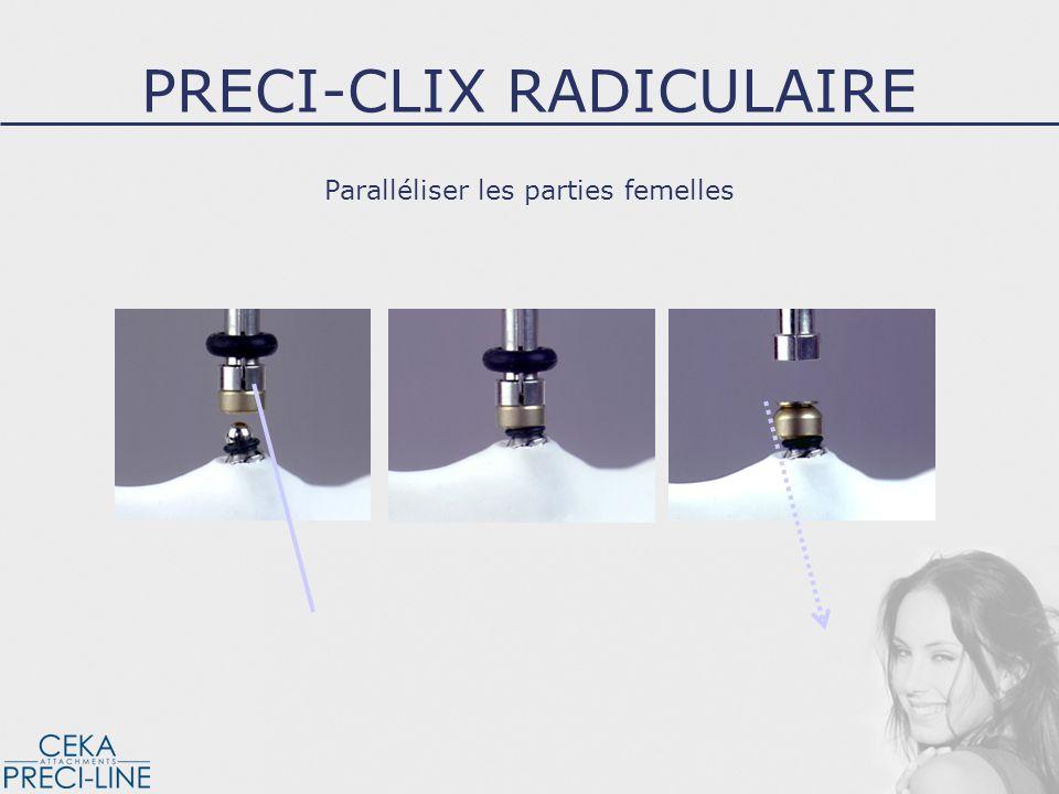Lancrage de la partie femelle dans la résine PRECI-CLIX RADICULAIRE