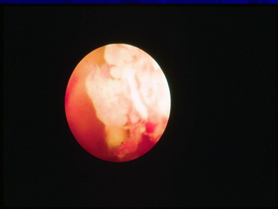 Treatment of RA patients with MRA Nishimoto N.Arthritis Rheum.