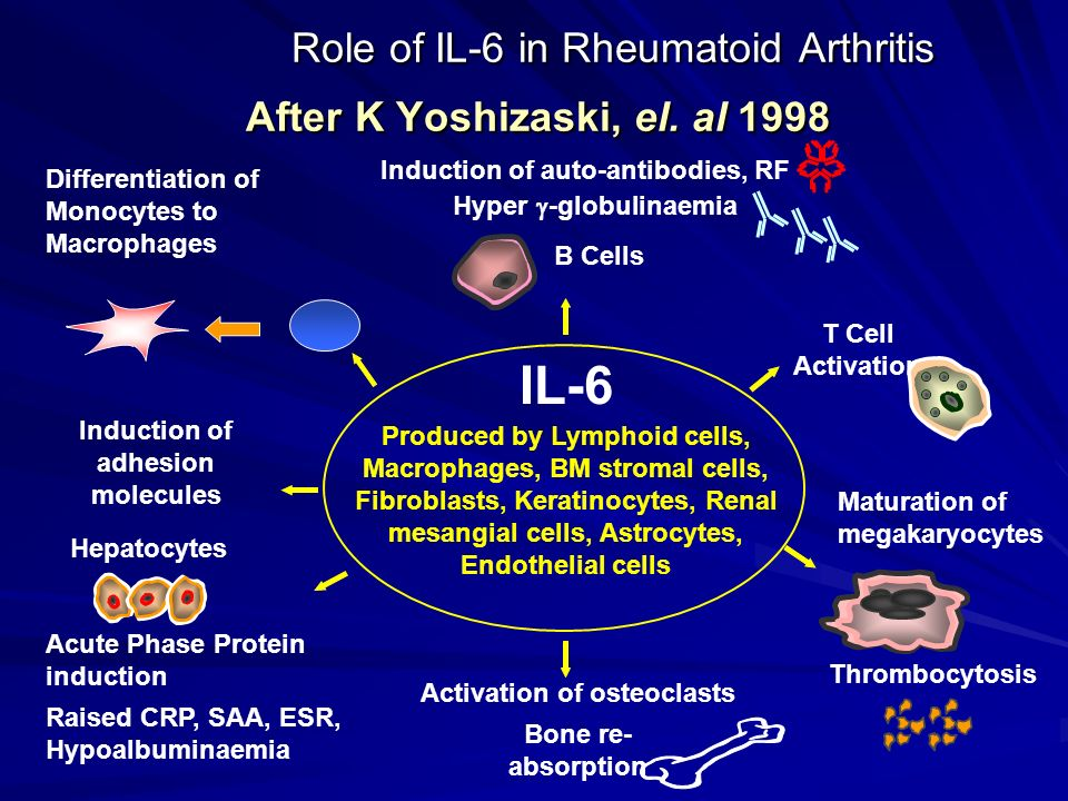 Role of IL-6 in Rheumatoid Arthritis After K Yoshizaski, el. al 1998 Role of IL-6 in Rheumatoid Arthritis After K Yoshizaski, el. al 1998 IL-6 Produce