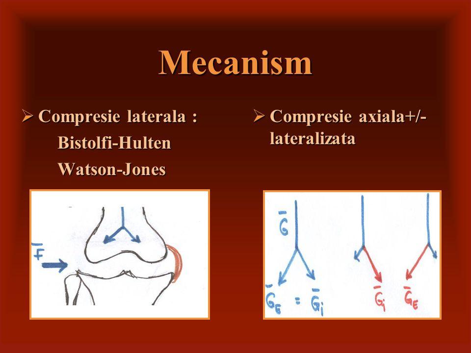 Compression axiale Fracture bitubérositaire Fr.