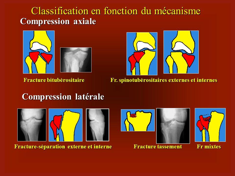 Clasificare 1.Fractura unituberozitara externa (40-55%): separare / tasare / mixta separare / tasare / mixta 2.Fractura unituberozitara interna (8-10%)