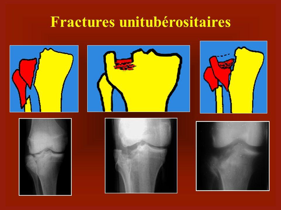 Fractures-enfoncements
