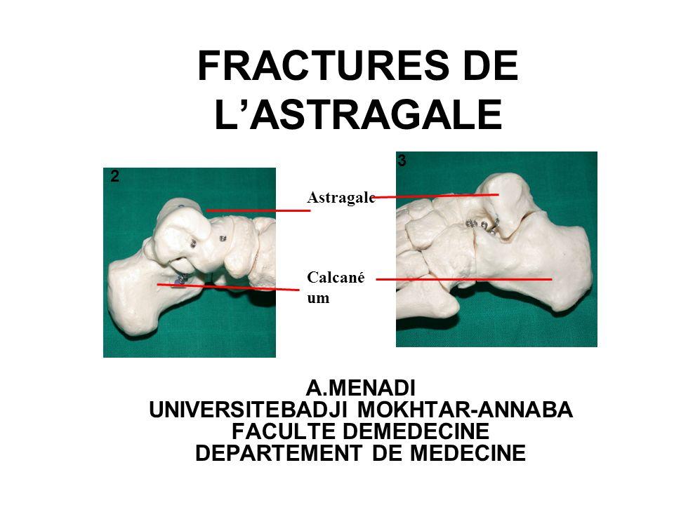TRAITEMENT 1-BUT:obtenir réduction parfaite stabilisée efficacement 2-MOYENS: *orthopédiques:(fr parcellaire,fr totale type 1) -réduction flexion plantaire forcée+++ -platre cruro pédieux *chirurgicales:(fr totale type 2-3) -voie dabord antéro interne Matériels:vissage -astragalectomie -arthrodése tibio astragalienne et sous astragalienne