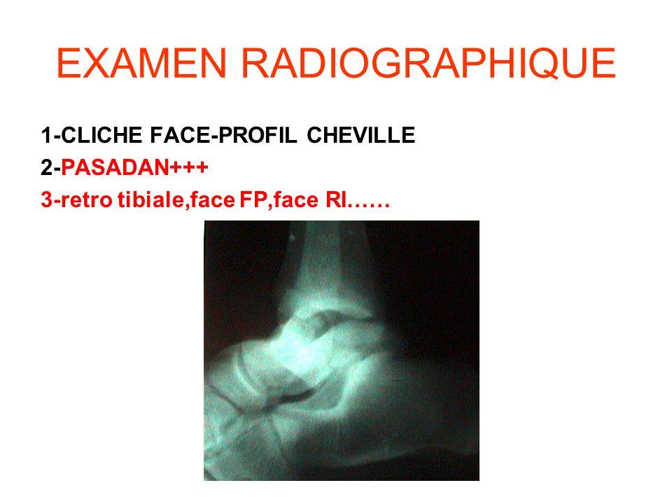 EXAMEN RADIOGRAPHIQUE 1-CLICHE FACE-PROFIL CHEVILLE 2-PASADAN+++ 3-retro tibiale,face FP,face RI……