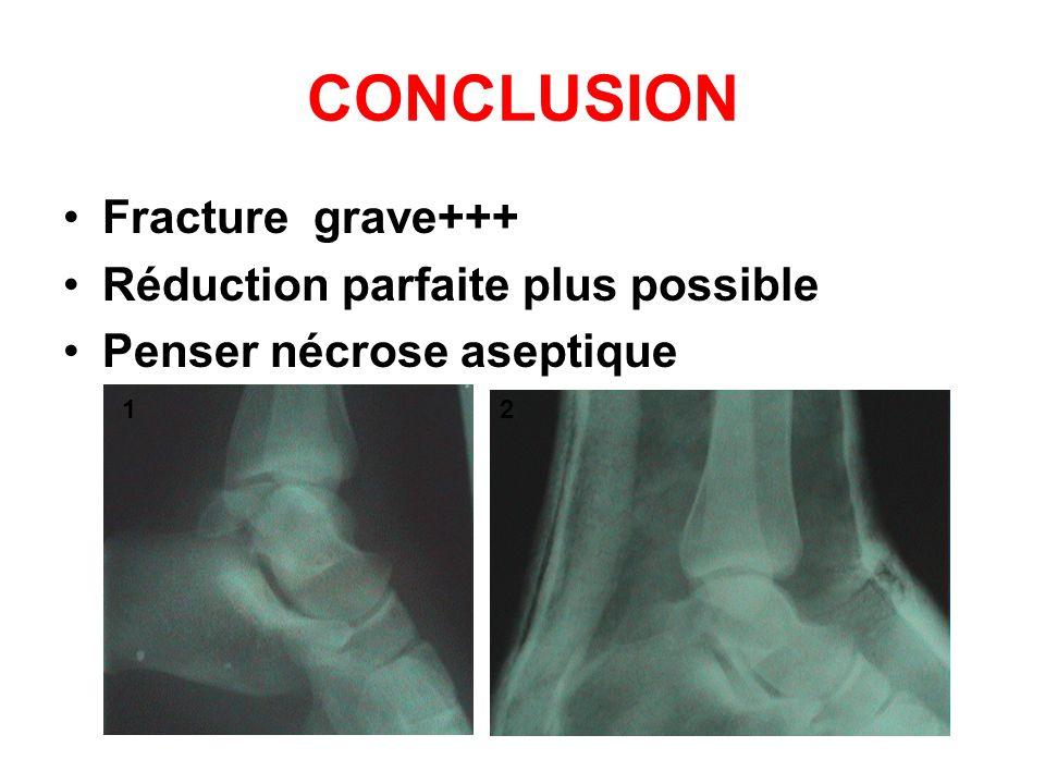 CONCLUSION Fracture grave+++ Réduction parfaite plus possible Penser nécrose aseptique 12