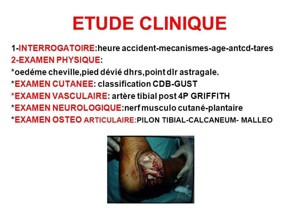 ETUDE CLINIQUE 1-INTERROGATOIRE:heure accident-mecanismes-age-antcd-tares 2-EXAMEN PHYSIQUE: *oedéme cheville,pied dévié dhrs,point dlr astragale. *EX