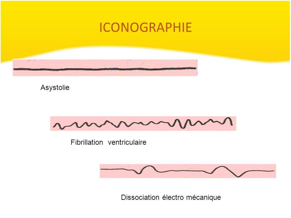 ICONOGRAPHIE Asystolie Fibrillation ventriculaire Dissociation électro mécanique