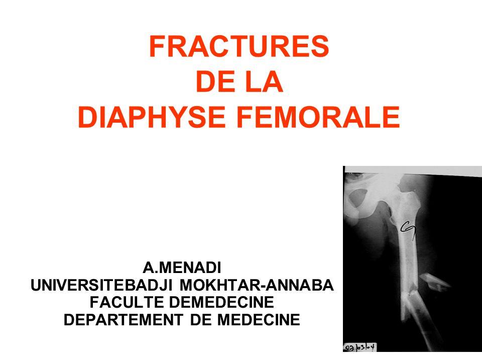 FRACTURES DE LA DIAPHYSE FEMORALE A.MENADI UNIVERSITEBADJI MOKHTAR-ANNABA FACULTE DEMEDECINE DEPARTEMENT DE MEDECINE