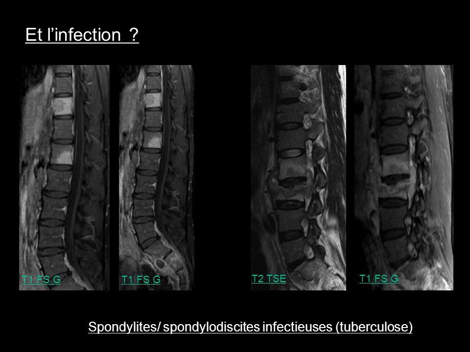 T2 TSE T1 FS G Spondylites/ spondylodiscites infectieuses (tuberculose) Et linfection ?