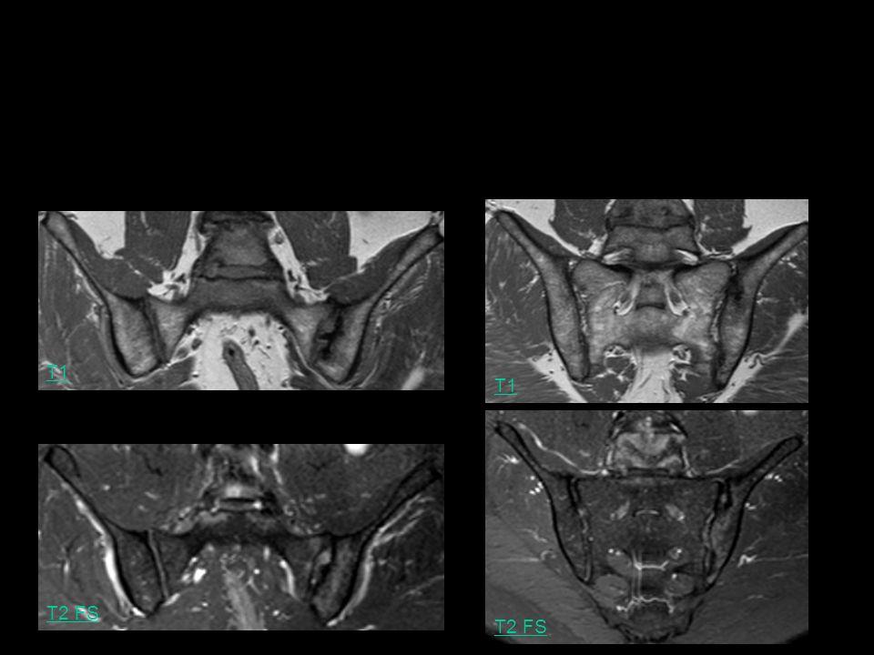 T1 T2 FS T1 Ca se complique vraiment… Homme, 49 ans, rachialgies inflammatoires: spondylodiscite dans le cadre dune SPA