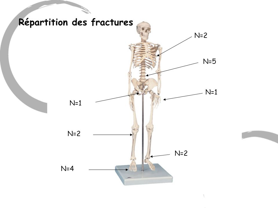 N=2 N=5 N=1 N=2 N=4 N=2 N=1 Répartition des fractures