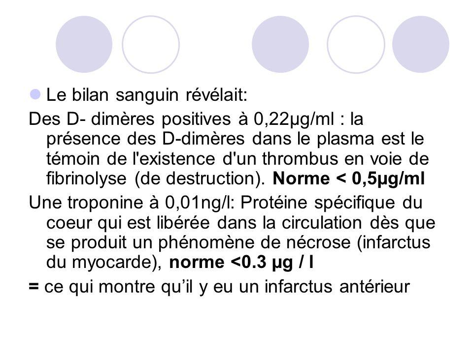 Le bilan sanguin révélait: Des D- dimères positives à 0,22µg/ml : la présence des D-dimères dans le plasma est le témoin de l'existence d'un thrombus