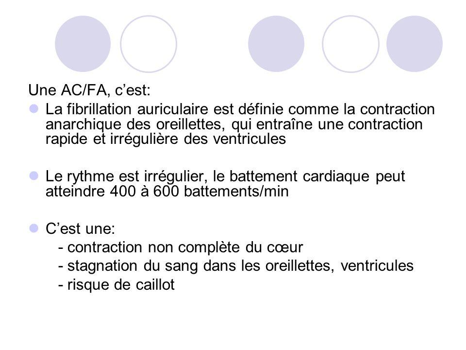 Une AC/FA, cest: La fibrillation auriculaire est définie comme la contraction anarchique des oreillettes, qui entraîne une contraction rapide et irrég