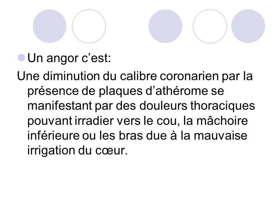 Un angor cest: Une diminution du calibre coronarien par la présence de plaques dathérome se manifestant par des douleurs thoraciques pouvant irradier