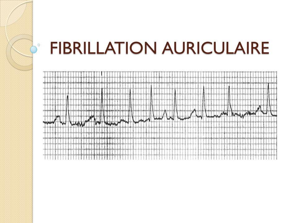 Calcul du CHA2DS2-VASC C= Insuffisance cardiaque congestive, dysfonction ventriculaire (FEVG < 40%) H=Hypertension A=Age> ou = 75 ans 2 points D=Diabète S=AVC-AIT- embolie systémique 2 points V=maladie vasculaire A= âge=65-74 ans Sc= sexe féminin