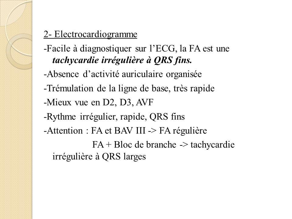 2- Electrocardiogramme -Facile à diagnostiquer sur lECG, la FA est une tachycardie irrégulière à QRS fins. -Absence dactivité auriculaire organisée -T