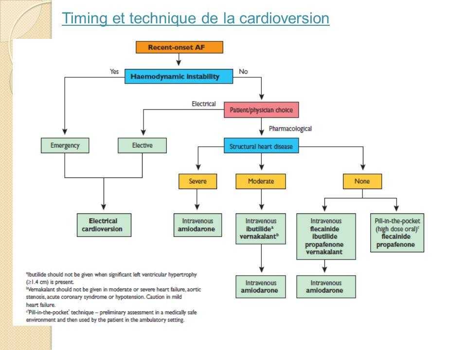 Timing et technique de la cardioversion