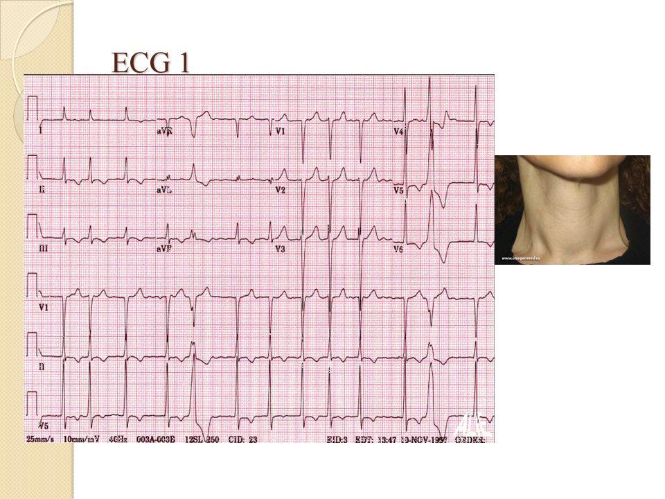 Questions: 1.Quel est votre examen clinique devant laspect de cet ECG.