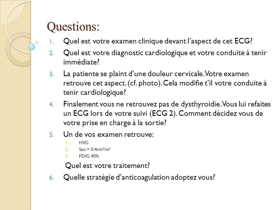 Questions: 1. Quel est votre examen clinique devant laspect de cet ECG? 2. Quel est votre diagnostic cardiologique et votre conduite à tenir immédiate