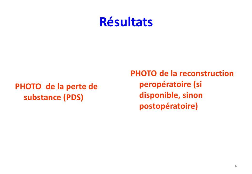 Résultats PHOTO de la perte de substance (PDS) PHOTO de la reconstruction peropératoire (si disponible, sinon postopératoire) 6