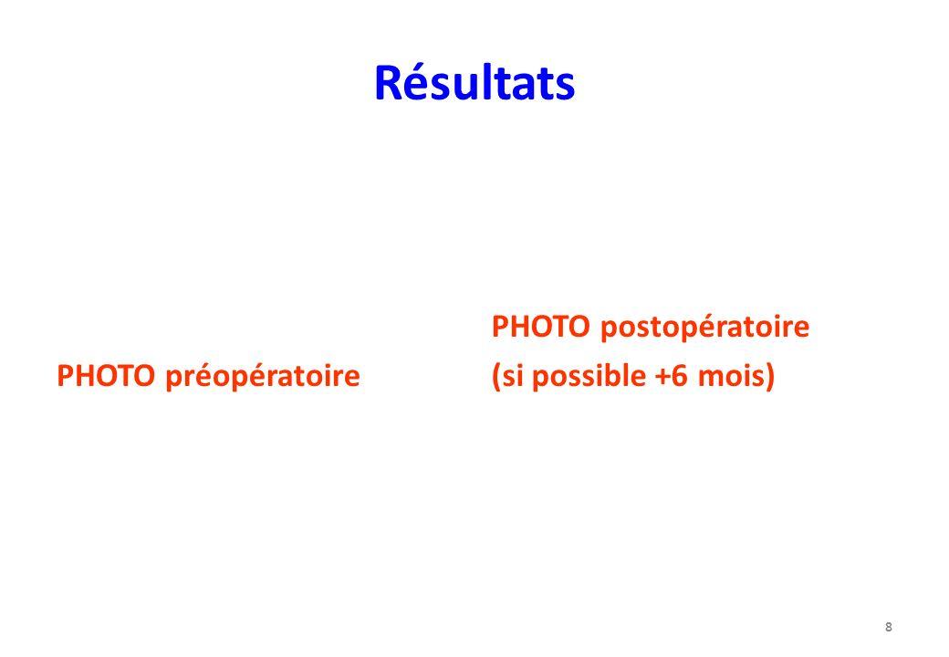 Résultats PHOTO préopératoire PHOTO postopératoire (si possible +6 mois) 8