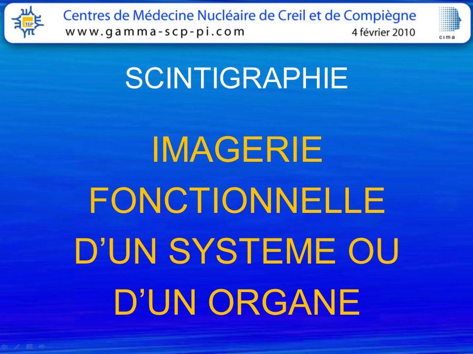 EXPLORATION PAR TOMOSCINTIGRAPHIE Scanner : coupes transversales