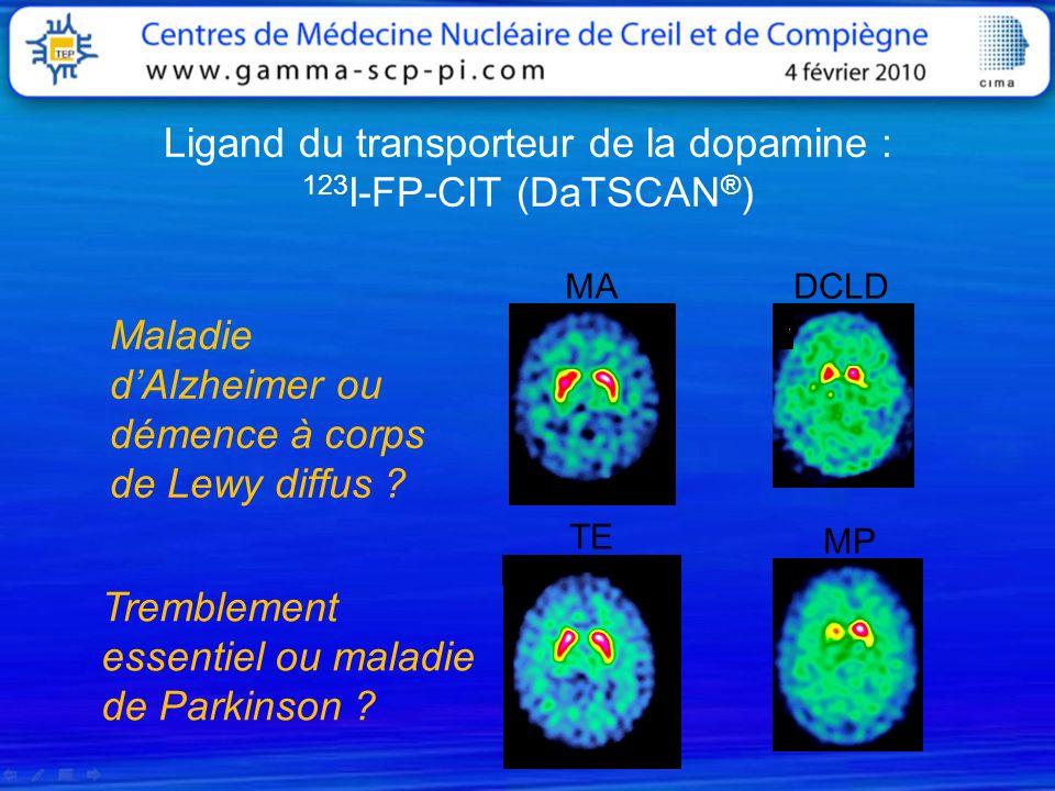 Ligand du transporteur de la dopamine : 123 I-FP-CIT (DaTSCAN ® ) MADCLD Maladie dAlzheimer ou démence à corps de Lewy diffus ? Tremblement essentiel