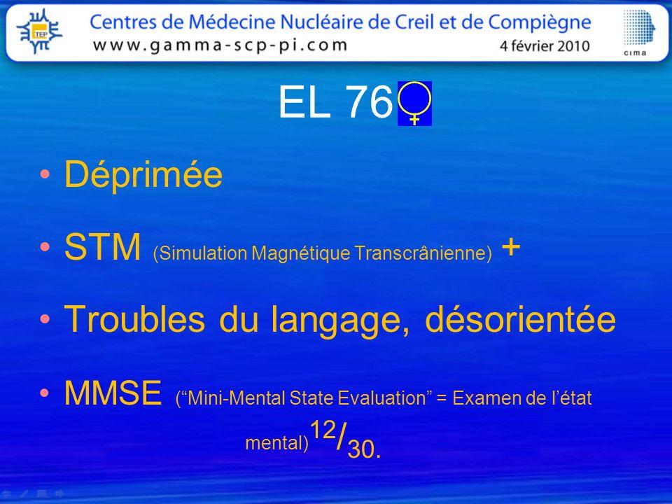 EL 76 Déprimée STM (Simulation Magnétique Transcrânienne) + Troubles du langage, désorientée MMSE (Mini-Mental State Evaluation = Examen de létat ment