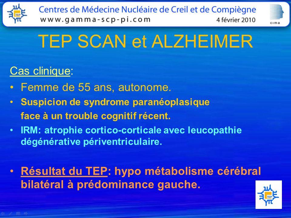 TEP SCAN et ALZHEIMER Cas clinique: Femme de 55 ans, autonome. Suspicion de syndrome paranéoplasique face à un trouble cognitif récent. IRM: atrophie