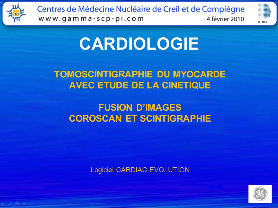 CARDIOLOGIE TOMOSCINTIGRAPHIE DU MYOCARDE AVEC ETUDE DE LA CINETIQUE FUSION DIMAGES COROSCAN ET SCINTIGRAPHIE Logiciel CARDIAC EVOLUTION