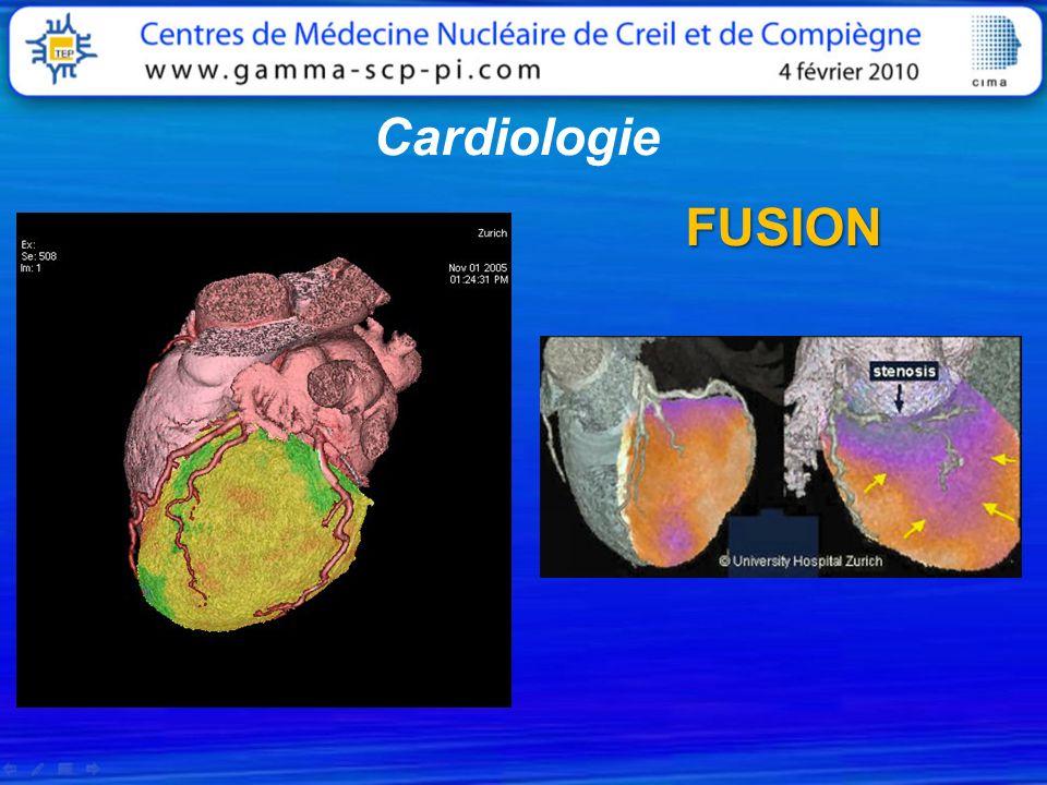 FUSION Cardiologie