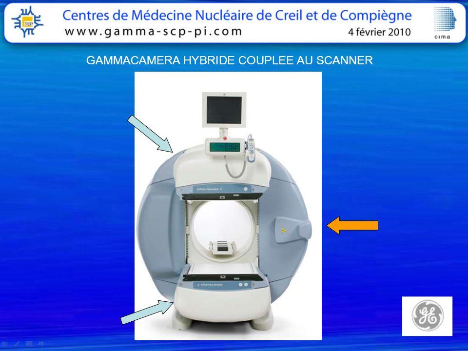 Thyroïde Lobe Gauche FA Mme SA. L. Agénésie du lobe droit De la thyroïde ? SCINTIGRAPHIE
