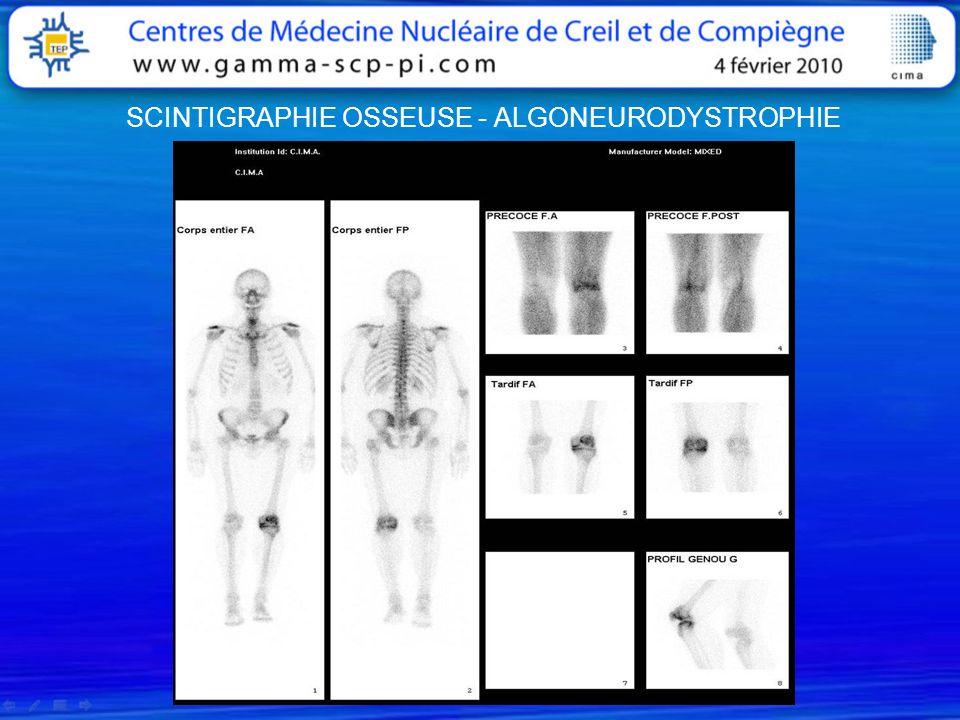 Examen du 15/06/2007Ostéome ostéoide