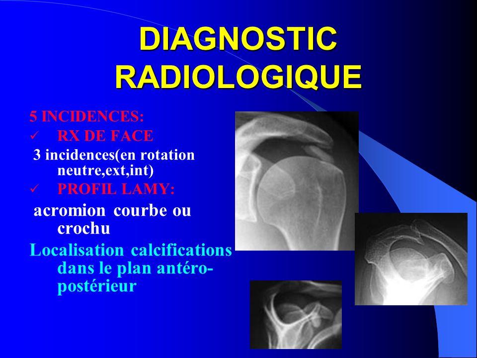 DIAGNOSTIC RADIOLOGIQUE 5 INCIDENCES: RX DE FACE 3 incidences(en rotation neutre,ext,int) PROFIL LAMY: acromion courbe ou crochu Localisation calcific