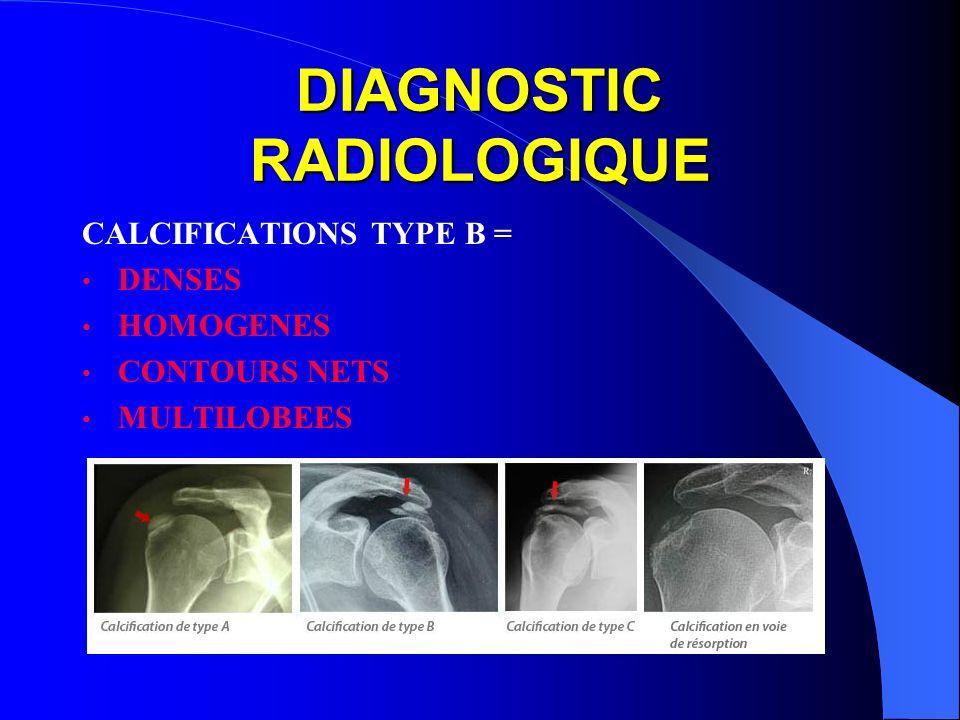 DIAGNOSTIC RADIOLOGIQUE CALCIFICATIONS TYPE B = DENSES HOMOGENES CONTOURS NETS MULTILOBEES