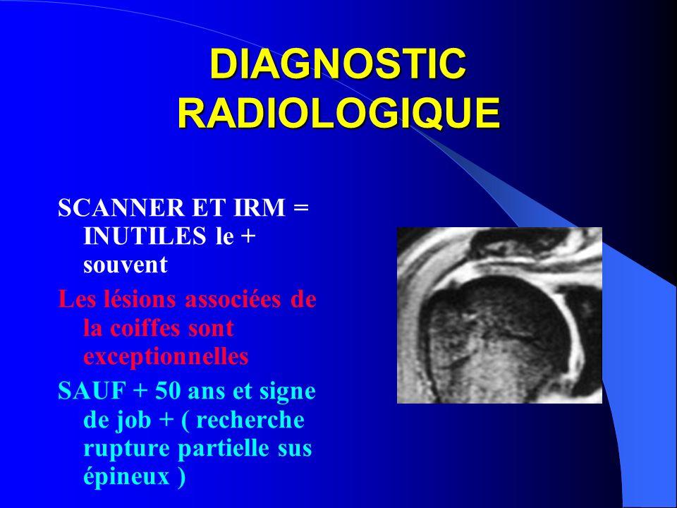 DIAGNOSTIC RADIOLOGIQUE SCANNER ET IRM = INUTILES le + souvent Les lésions associées de la coiffes sont exceptionnelles SAUF + 50 ans et signe de job