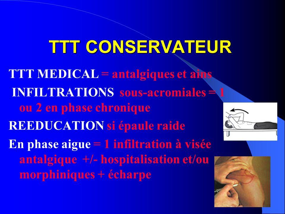 TTT CONSERVATEUR TTT MEDICAL = antalgiques et ains INFILTRATIONS sous-acromiales = 1 ou 2 en phase chronique REEDUCATION si épaule raide En phase aigu