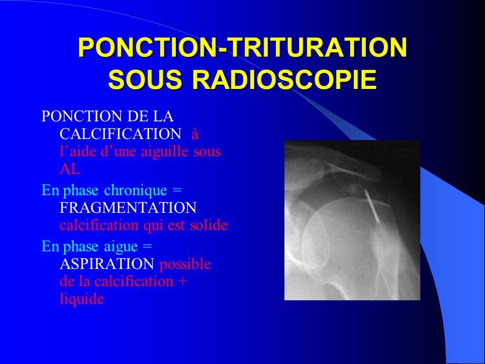 PONCTION-TRITURATION SOUS RADIOSCOPIE PONCTION DE LA CALCIFICATION à laide dune aiguille sous AL En phase chronique = FRAGMENTATION calcification qui