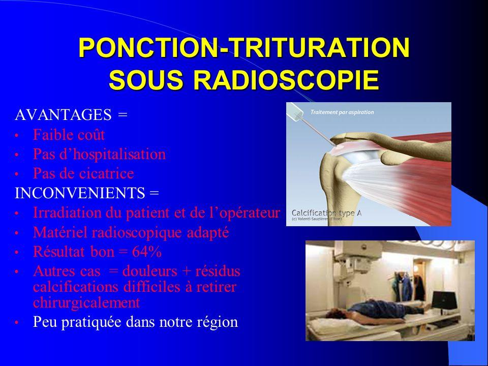 PONCTION-TRITURATION SOUS RADIOSCOPIE AVANTAGES = Faible coût Pas dhospitalisation Pas de cicatrice INCONVENIENTS = Irradiation du patient et de lopér