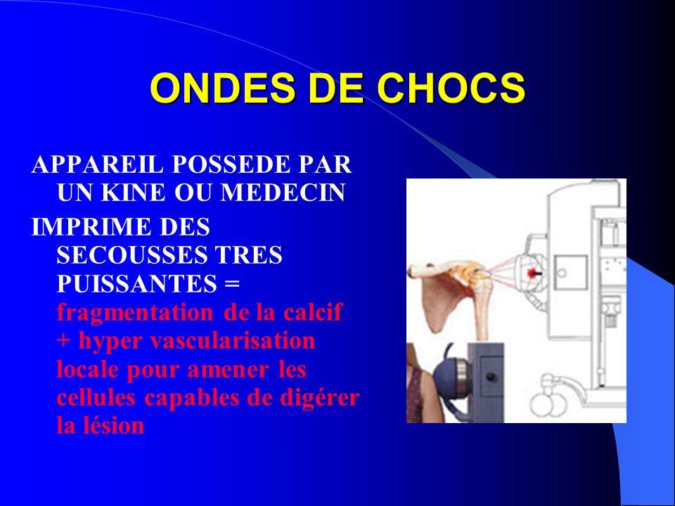 ONDES DE CHOCS APPAREIL POSSEDE PAR UN KINE OU MEDECIN IMPRIME DES SECOUSSES TRES PUISSANTES = fragmentation de la calcif + hyper vascularisation loca