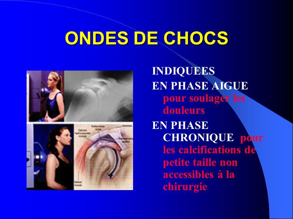 ONDES DE CHOCS INDIQUEES EN PHASE AIGUE pour soulager les douleurs EN PHASE CHRONIQUE pour les calcifications de petite taille non accessibles à la ch
